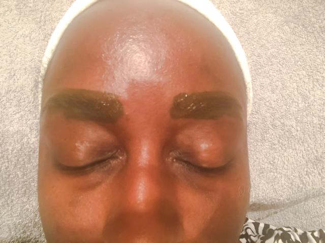 Microbalding African American Skin • chidibeauty.com